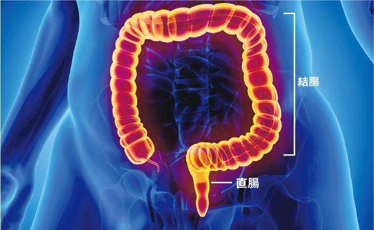 大腸癌 微創手術 結腸癌