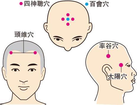 西醫脫髮治療 中醫調理肝腎 聯手搶救禿頭危機
