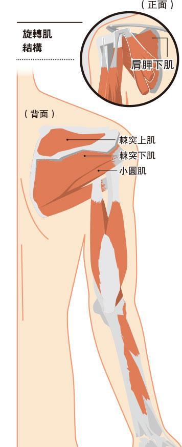 旋轉肌  肩膊痛  旋轉肌撕裂  低頭族  肌腱發炎  rotator cuff tear 肥胖 吸煙