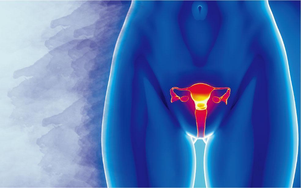 晚期卵巢癌80%復發 腹腔化療延長8至16月壽命