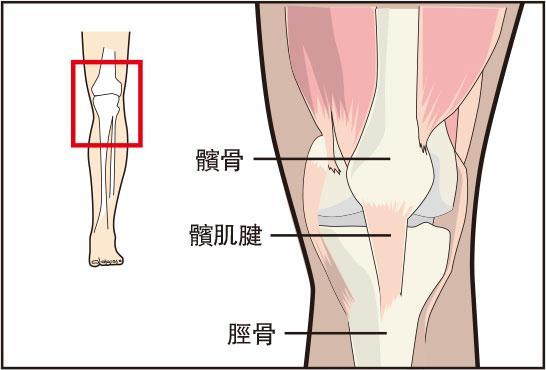 骨骼「偵」奇:「跳躍者膝」疼痛難走路