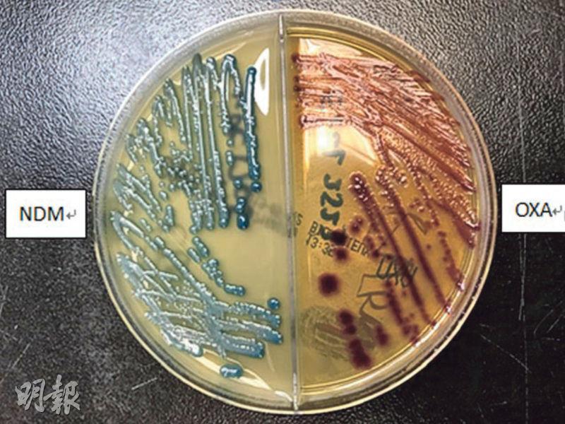 抗藥惡菌CPE個案倍升 專家:每年數宗無藥可治 部分死亡