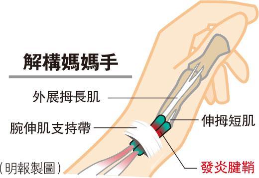 媽媽手,拇指肌腱急性發炎