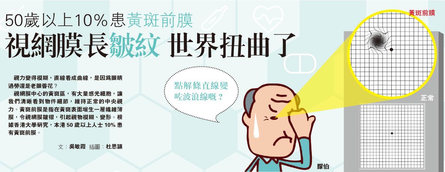 黃斑前膜,視網膜,眼科,長者健康