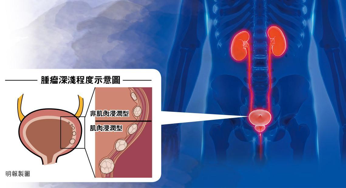 磁力共振新技術 膀胱癌睇真啲