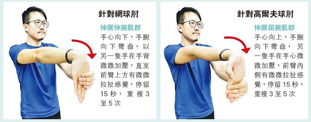【運動消閒】預防網球肘 每隔1小時 放下工作伸一伸