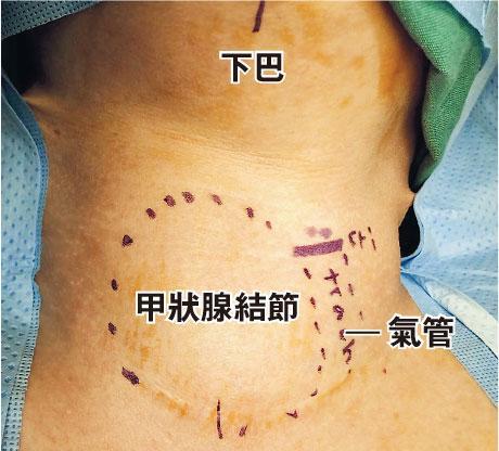 頸腫, 甲狀腺結節,