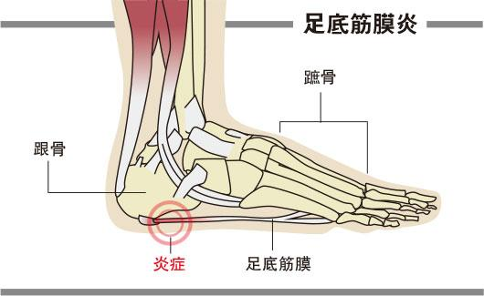 足底筋膜炎, 靜脈曲張,