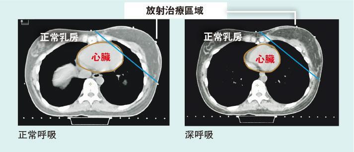 【乳癌電療】善用呼吸法護心 減輻射引致心病風險