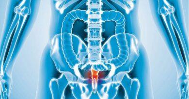 先電療再切除 根治直腸癌 或可保肛門 毋須永久造口