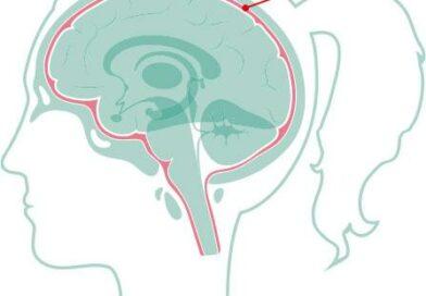 腦膜炎三大病原體