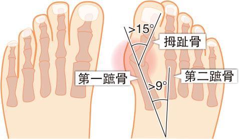 骨骼「偵」奇:芭蕾舞鞋隱藏「波子骨」