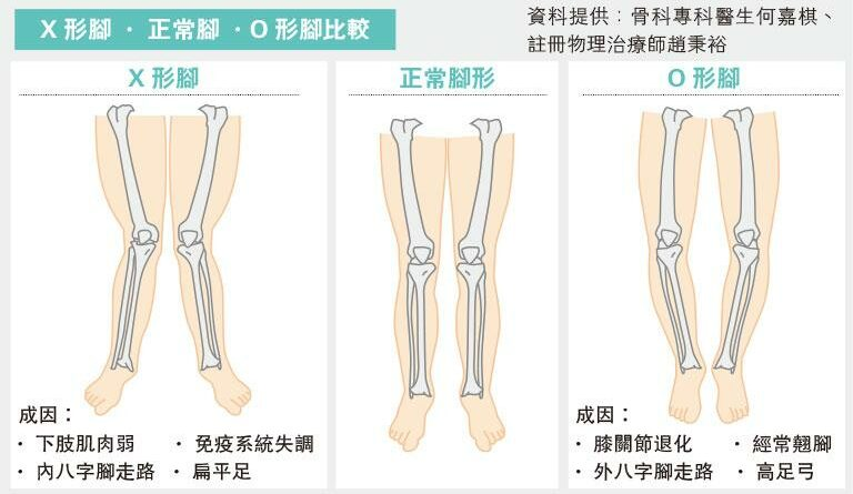 【有片】腿變形成因多 運動未必拉得直 O形:膝退化 X形:或免疫系統疾病