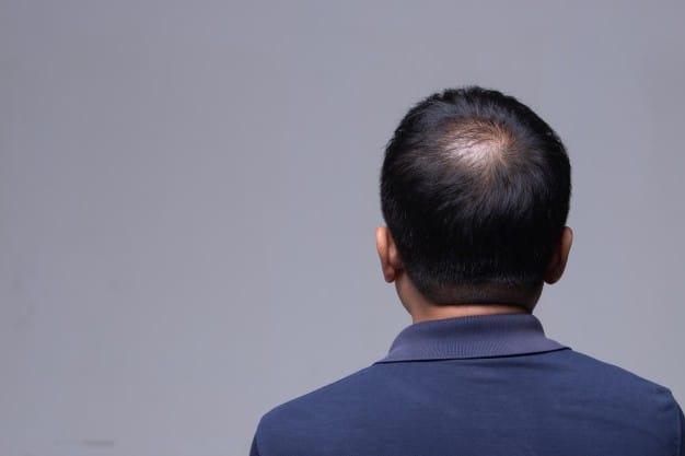 區分頭瘡:濕疹掉皮屑 頭癬脫髮似圓餅