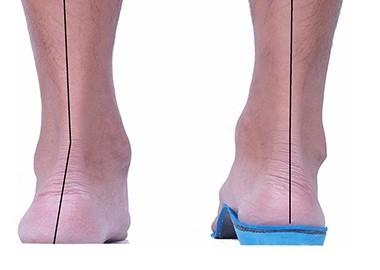 針對治療:運動抗膝退化 矯正鞋墊改善足弓