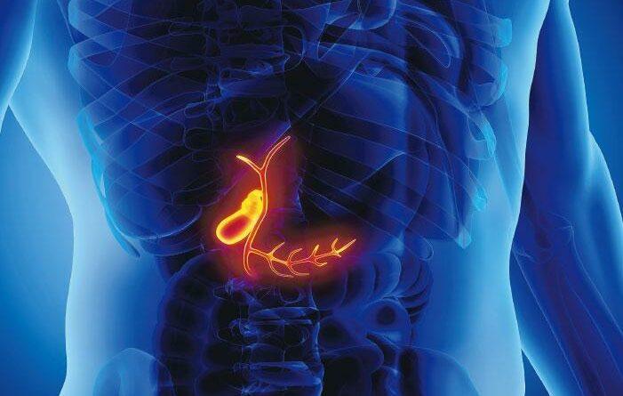 化療開刀用盡 窮途末路? 基因導引治療 拯救罕見膽管癌