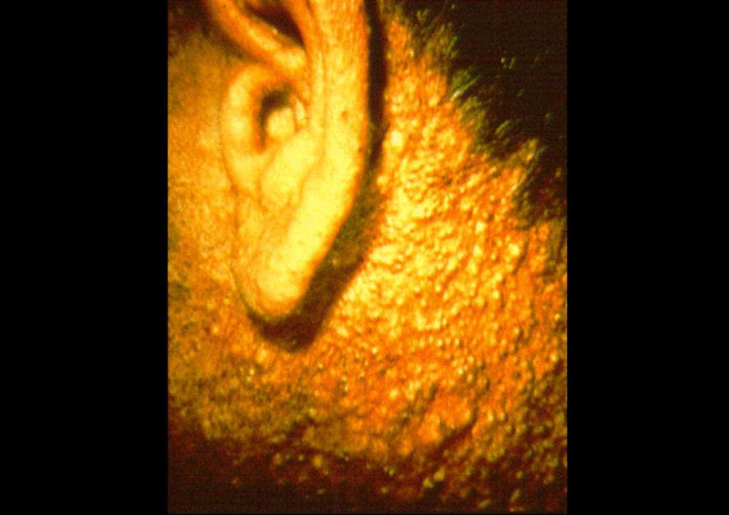 氯痤瘡,chloracne
