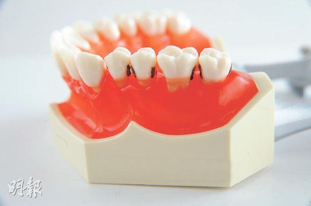 杜牙根後牙齒變黃變灰?牙內漂白重拾燦爛笑容