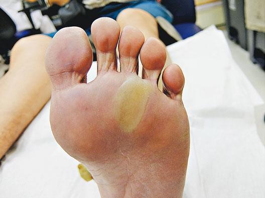 病人服標靶藥後步步痛楚 足病診療師助踏步