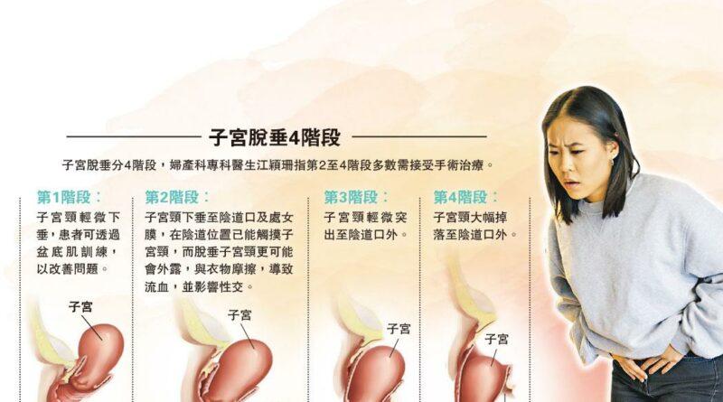 【尿道炎】不是產婦獨有 子宮膀胱脫垂 非尿頻元兇