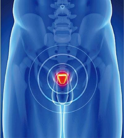 前列腺癌電療 最快5次搞掂