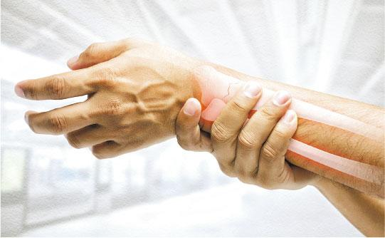 橈骨遠端骨折