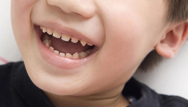 養和特稿, 兒童健康, 蛀牙, 護齒, 牙菌膜, 乳齒, 兒童齒科, 矯齒治療, 口腔檢査, 牙醫,