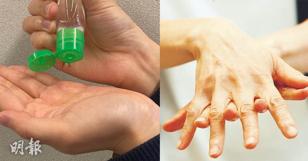 【武漢肺炎】搓手液愈多愈有效?醫生提醒:搓手時間覆蓋範圍更重要