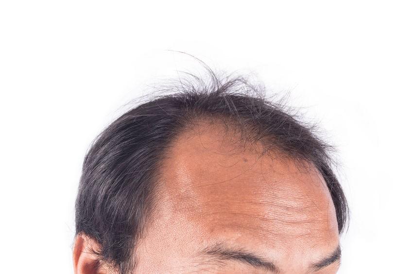【容光煥發新一年】 查找脫髮、頭皮屑多問題根源 M字額、髮線上移與遺傳有關 掌握正確護髮之道 自然容光煥「髮」
