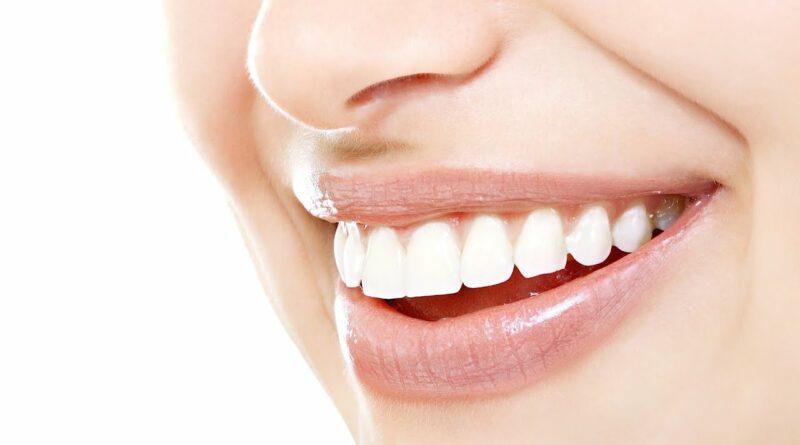 【容光煥發新一年】 牙齒變黃、蛀牙問題多 牙醫利用數碼技術 打造自信笑容