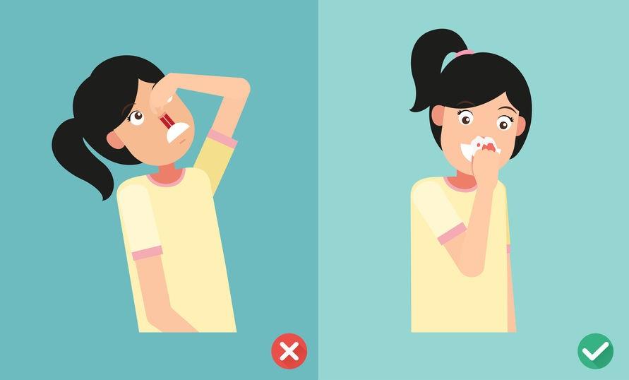 【耳鼻喉問題】經常挖鼻、擤鼻涕易致流鼻血 緊記正確止血手法 4個注意事項