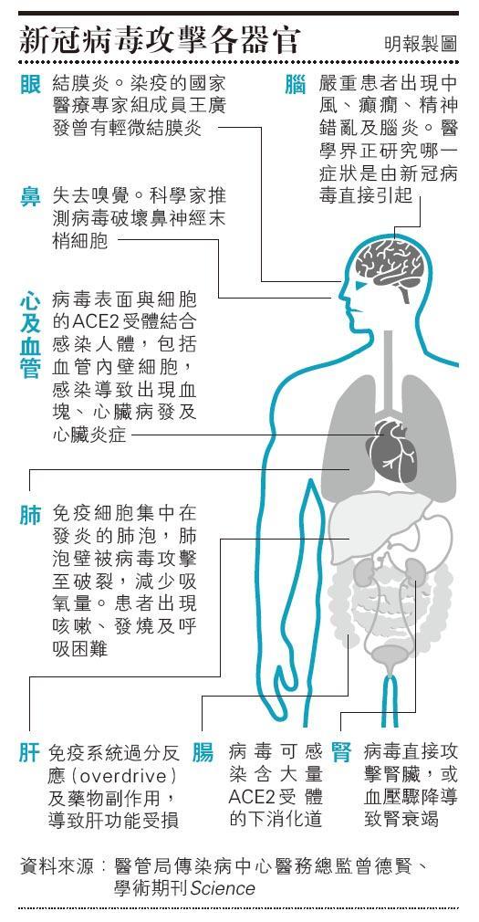 【抗疫你要知】 新型冠狀病毒疫情初期逾半患者「肺花」 次波疫情僅一兩成有肺炎