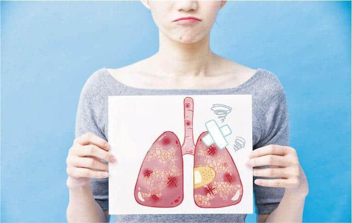新冠遺「磨砂玻璃肺」 運動乏力 胸肺物理治療 掃走氣喘苦