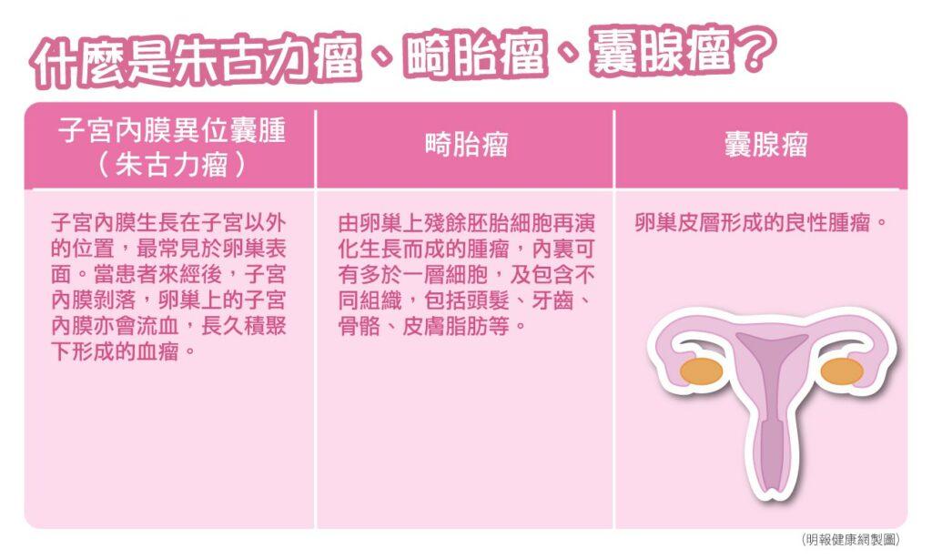 【女性疾病】 什麼是朱古力瘤、畸胎瘤和囊腺瘤? 認清病理性卵巢囊腫  有致併發症或癌變可能