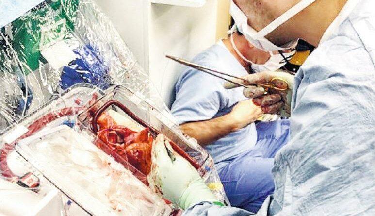 輪候換心人趨增 去年換心手術8年新低 今秋冬若再爆發新型冠狀病毒恐續處低位
