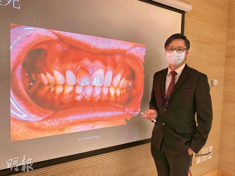 港大牙醫學院:自助箍牙籲勿試 難察牙模移位、咬合問題