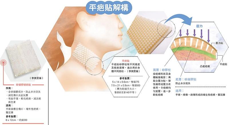 【去疤】傷口留痕 傷身更傷心 一張貼施壓保濕 撫平疤痕