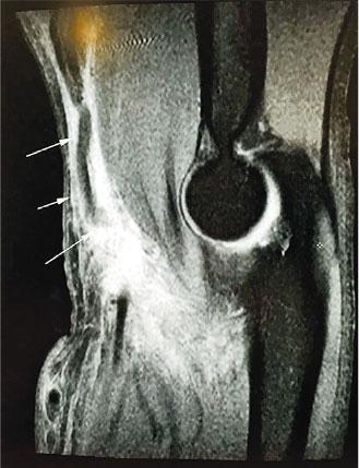 肱二頭肌撕裂變出「老鼠仔」 假大力水手軟弱無力