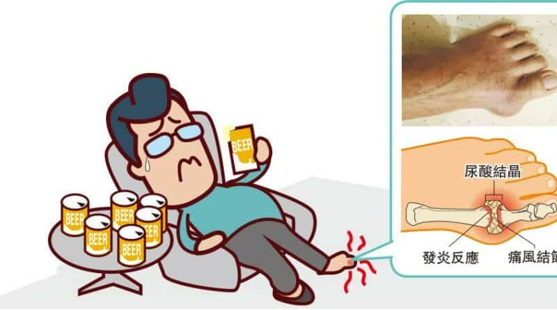 醫路同行:痛風不治本 頑「石」纏身