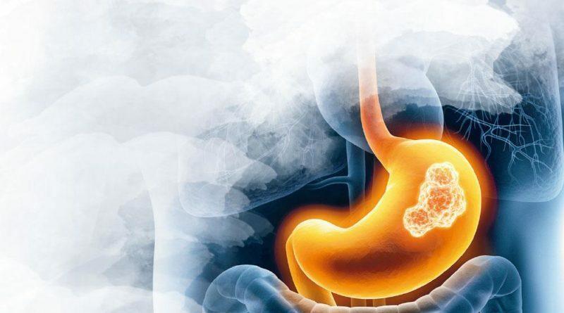 醫學滿東華:蛋白尿持續有泡不易散