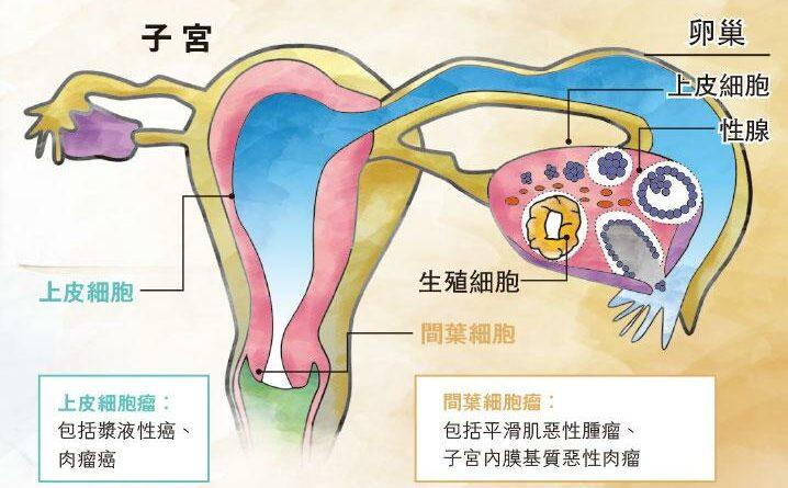 【子宮體癌】罕見婦科癌 徵狀相似 療法大不同