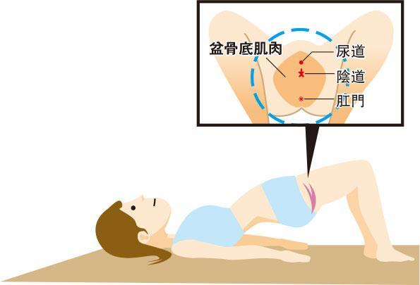 醫學滿東華:鍛煉盆骨底肌 減輕滲尿