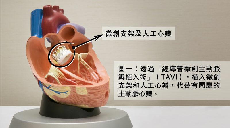 【心臟病與三高】心瓣疾病成因、徵狀及治療 微創手術處理降風險、減創傷