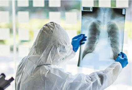【新冠肺炎】港大孔繁毅:新冠患者康復出院後仍有乾咳、肌肉痛徵狀  少數肺部長期纖維化