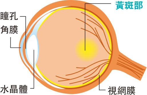 現代中醫:黃斑水腫可致失明 健脾滲濕改善