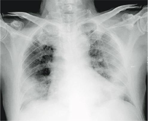 肺部有陰影|肺腑之言:如何診斷「肺花」?
