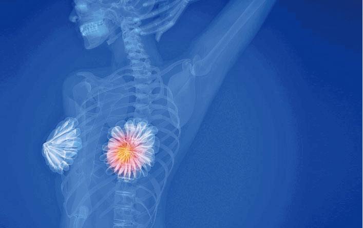 乳腺癌|女性40歲後患癌風險增 乳腺癌新症10年急升76% 港大學者料與體重增加減少生育哺乳有關