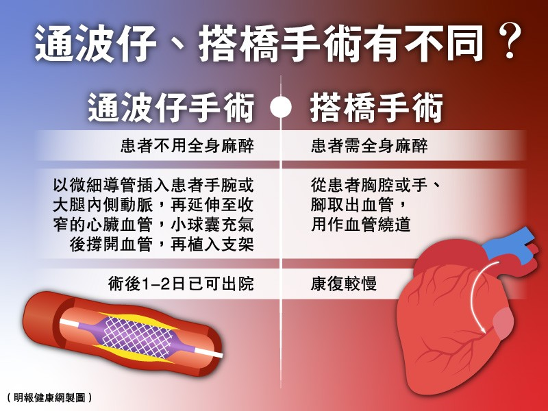 【通波仔/搭橋】冠心病成因及6個高危因素 早期血管收窄病徵不明顯 增病發猝死風險 手術後須妥善控制三高及戒煙