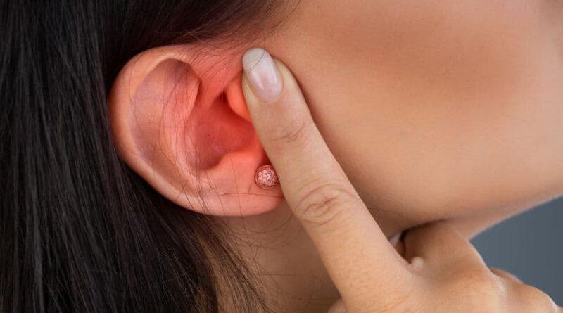 【中耳炎】急性及慢性中耳炎成因各不同 手術處理積水、修補耳膜助復原 避免永久損聽覺