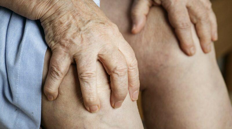 【痛症】類風濕關節炎早期徵狀不明顯 關節紅腫疼痛?宜早診斷早治療減關節侵蝕